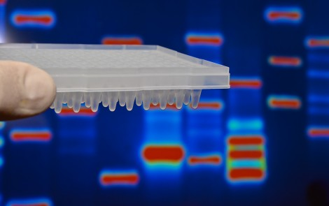 Gene Activity Profiling Reinforces Inflammation's Role in Gaucher Disease