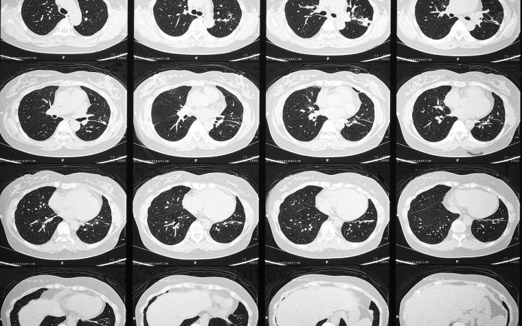 A lung high-resolution computed tomography (HRCT) scan might reveal how Gaucher disease affects the lungs.