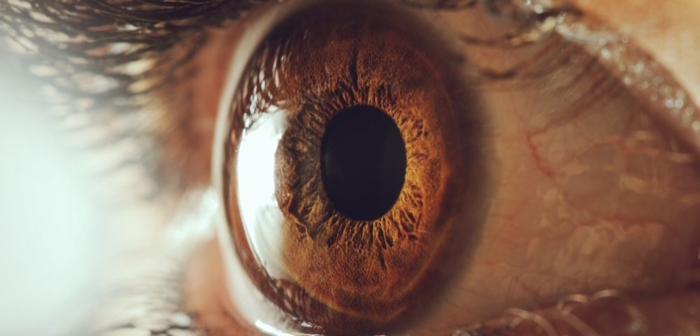 Rare Case of Gaucher Patient with Eye Lesions Despite Enzyme Replacement Therapy Reported