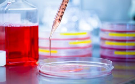 New Test May Help Select Gaucher Patients Best Suited for Chaperone Therapy, Study Suggests