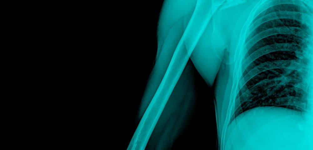 Poor Bone Health in Gaucher Disease May Be Unrelated to the Condition Itself, Study Reports