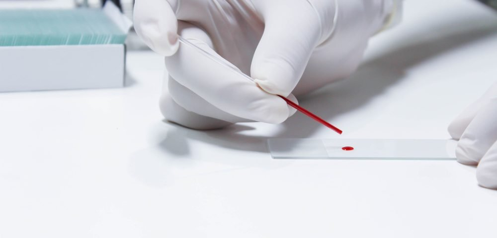 New Method of Diagnosing and Monitoring Gaucher Disease Uses Dried Blood Samples