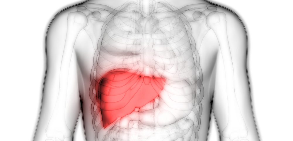 Fatty Liver Common, Linked to Scarring, in Type 1 Gaucher, Study Finds
